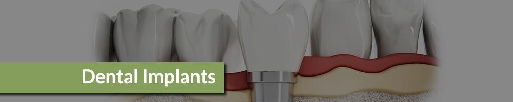 dental-implants-header-00001.jpg