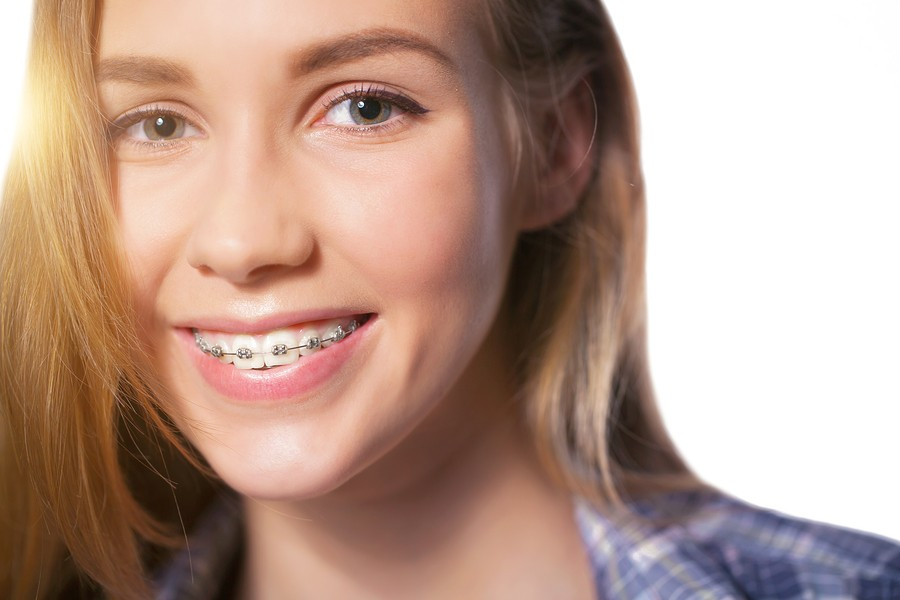 braces in houston tx.jpg