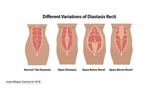 rs.what-is-diastasis-recti-1 (1).jpg